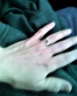 left hand healed